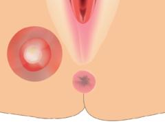 Krebs der Vulva eine seltene Erkrankung