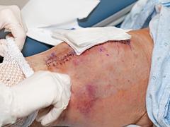 Versorgung von Patienten mit Endoprothesen