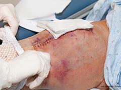 Wundinfektionen postoperativ erkennen