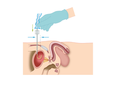 Der urologische Patient: Katheterismus
