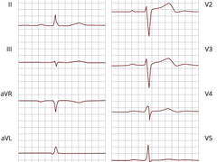 Das EKG: Grundlagen Teil 1