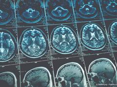 Schädel-Hirn-Trauma: Ursachen und Behandlung