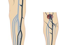 Thrombose: Wenn der Blutfluss stockt
