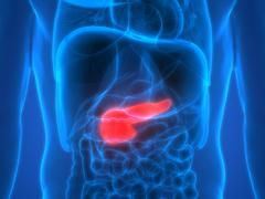 Krankheitsbild Bauchspeicheldrüsenkrebs