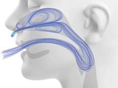 High-Flow Sauerstofftherapie