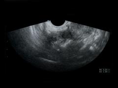 Formen und Therapie des Eierstockkrebs