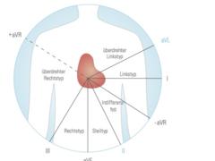 Das EKG: Analyse und Pathologien (Teil 2)