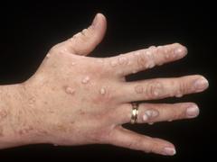Viruserkrankungen der Haut